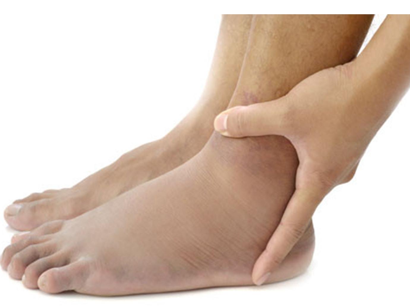 6 أعراض تشير إلى جلطة القدم